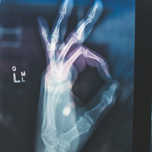 New 'bandage' helps rebuild broken bones
